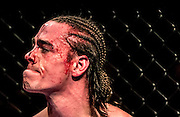 RJ Hickey, bloody after a loss 48 seconds into the second round of an MMA fight against Tommy Metzger, pauses before being cleaned up by his coaches.