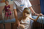 Tran Huynh Thuong Sinh born 28/04/2002 in Biñh Dinh Provence,.suffering with Fraser Syndrome, patient at the Peace Village at the Tu Du (Freedom) Obstetrics and Gynaecology Hospital in Ho Chi Minh City, Vietnam