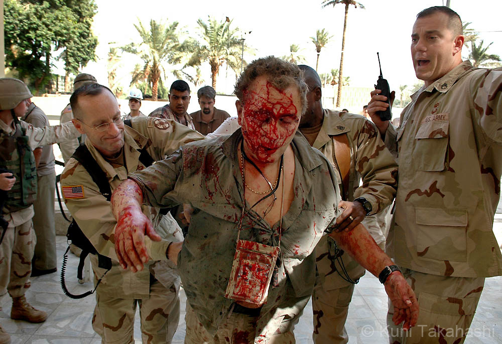 An injured foreigner is carried to the 31st Combat Support Hospital in Baghdad after bomb explosion in International Zone (Green Zone) on Oct 13, 2004.