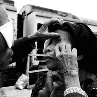 """CHONGZUO-APRIL 11:  an elderly woman has her eye inspected by a fellow farmer outside the """"Lifetime Express"""" train April 11, 2004 in Chongzhou, Guangxi province, China. Guangxi is one of the poorest places in China with an annual income of USD 120-250 per year for peasants. Without Lifetime Express, a Hong Kong based Non Governmental Organization (NGO) that performs cataract surgeries for free, many people in rural areas would remain partly blind as the official fee for such surgeries in China about USD 600 is out of reach for all of them."""