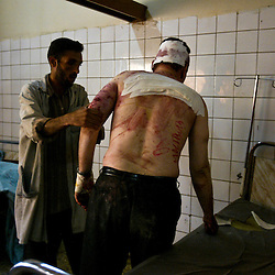 A man is treated at the Al Kindy Hospital for injuries sustained while working at the UN base inside the Canal Hotel where a cement truck packed with explosives detonated outside the offices killing 20 people and devastating the facility in Baghdad, Iraq on Aug. 20, 2003. This was an unprecedented suicide attack against the world body with at least 100 people wounded.