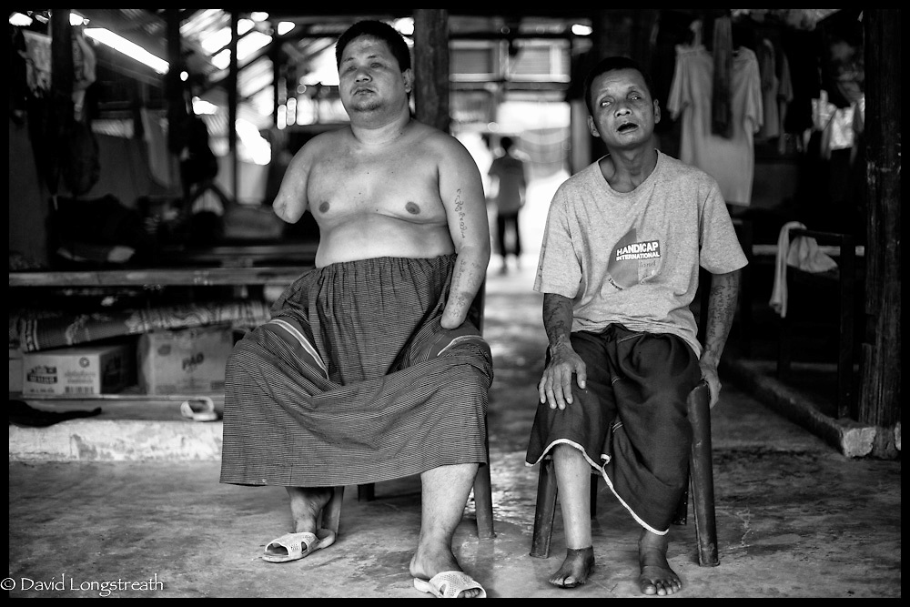 A pair of ethnic Karen refugee landmine victim at the Mae La refugee camp near Mae Sot, Thailand.  (Photo by David Longstreath)