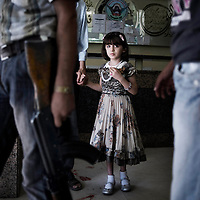 SYRIA, ALEPPO. A child who fell at home and knocked her head on the floor waits for a medical examination at Shifa hospital on September 27, 2012. The only emergency service still working in Rebels-controlled Aleppo, the Shifa hospital has been targeted more than thirty times by the Assad forces.  ALESSIO ROMENZI