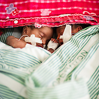 Two young twins born prematurely to an HIV positive mother. Debre Markos, Ethiopia.