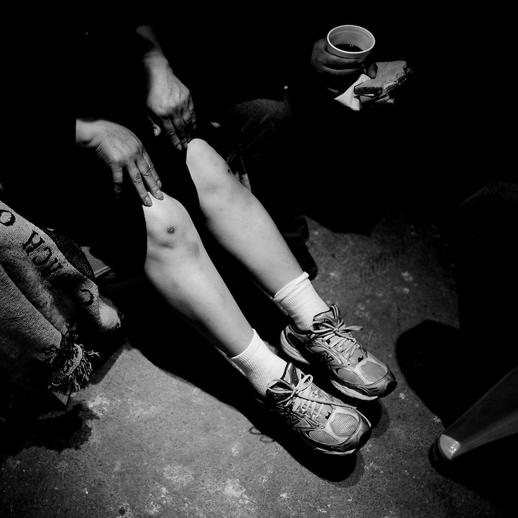 A woman who recently crossed illegally to the United States and was returned to Mexico by the Border Patrol shows scrapes on her legs at the Migrant Resource Center in Naco, Sonora, Mexico, on Wednesday, Jan. 30, 2008. The Migrant Resource Center is a bi-national project of Citizens for Border Solutions (Bisbee, AZ) and Iglesia del Camino (Naco, Mexico), with support from other organizations and individuals.
