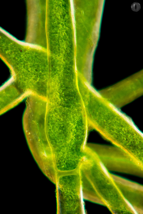 Marimo algae from Japan taken under a dark-field light microscope.