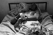 A patient rests on his bed  at CBL Center of Bujumbura ( Center for injured people). @ Martine Perret . 24 October 2005.