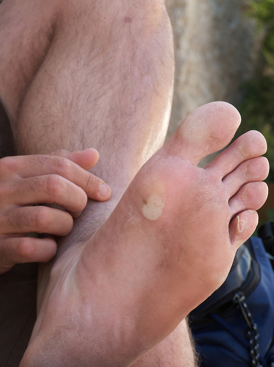 All along the Camino de santiago, walkers would sometime succumb to blisters. This walker had left it too late to prevent the formation of the blister. He had to wear sandals to get relief.