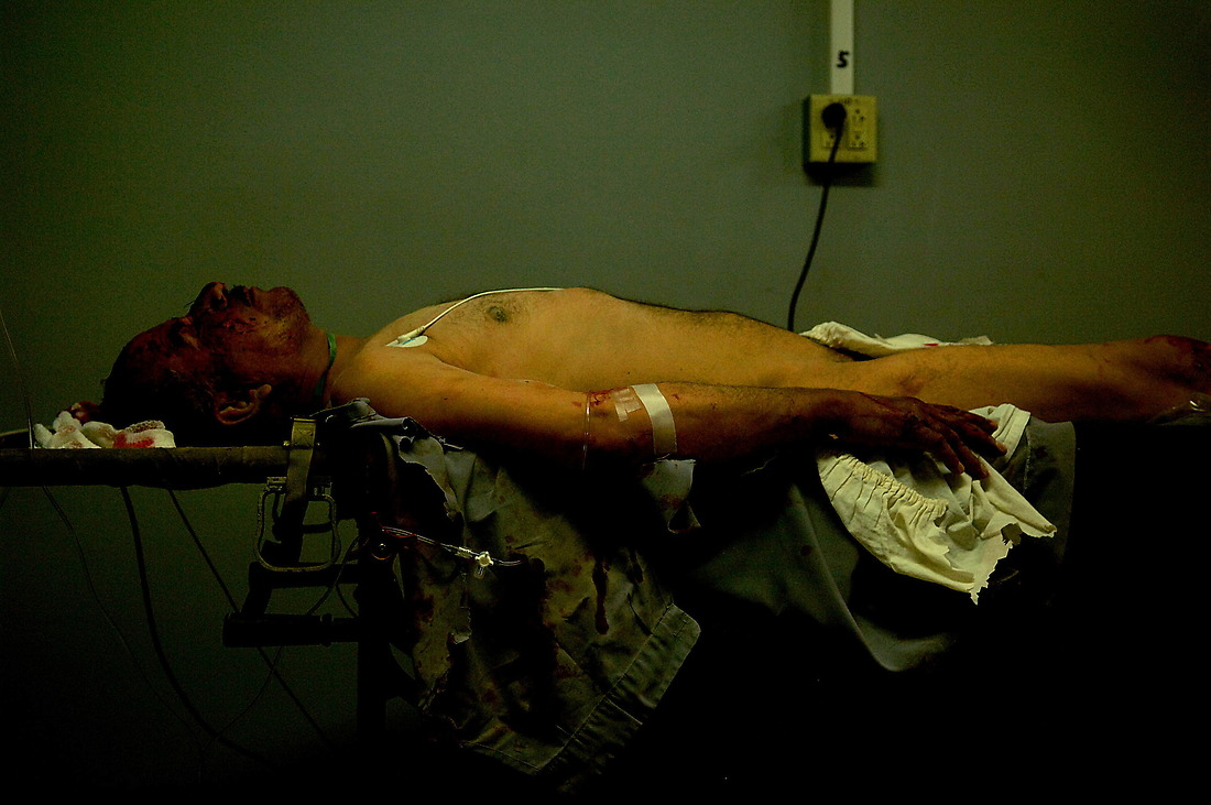 Laying on a gurney, an injured local Iraqi with a head wound is stabilized by soldiers from the 47th Combat Support Hospital, Ft Lewis Washington, and will be prepped for transport to Balad AB on July 7, 2006 at the hospital on FOB Diamondback, Mosul, Iraq. The injured received various wounds from a car bomb that struck the Husseinia Kurdish Shia Mosque in Tal Banat, Iraq. Initial reports stated nine local nationals' dead and 47 wounded. Nine of the wounded were treated at the Combat Support Hospital on FOB Diamondback. — © /Department of Defense