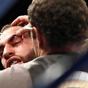 Lightweight boxing pro Joltin Joey Tiberi of Wilmington Delaware (L) receives treatment for a open cut to the eye during champs at the chase against Lightweight boxing pro Antoine Knight Friday, Nov 21, 2014 at The Case Center on The River Front in Wilmington, Del.