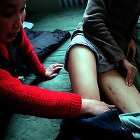 BEIJING,11/20/2000: Song Pengfei's mother points to the scar on Song's leg which was caused when Song by accident jumped on a sofa not noticing a pair of scissors.Due to a deep cut in his leg, Song consequently went to hospital where he was infected with dirty blood and became HIV positive. Song Pengfei is China's no.1 Aids activist.