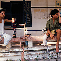 Landmine victims at a revalidation centre where they will receive artificial legs...Phnom Penh, Cambodia, 1992