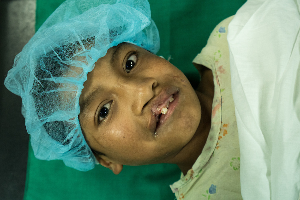 Cleft palate surgery at Occidente Hospital in Santa Rosa de Copan, Copan, Honduras on Feb. 20, 2017. Photo Ken Cedeno