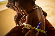 A nurse measures the arm of a local boy to determine if he is malnourished in Abougoudam, a village of Chadian Arab nomads. Abougoudam is in a remote area of Eastern Chad a several hours drive from Abeche.