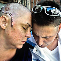 A couple victimized by gay-bashing in Boston.<br /> Photo by Mark Garfinkel