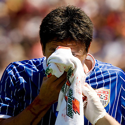 United States' Brian Ching leaves the field after getting his nose bloodied during the first half of their international friendly soccer match against Ecuador in Tampa, Florida March 25, 2007. REUTERS/Scott Audette (UNITED STATES)