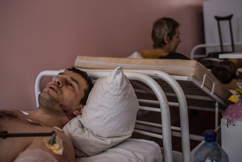 DONETSK, UKRAINE - JANUARY 23, 2015: Pavel Shevchuk, a 38-year-old factory worker, lies in Vishnevskogo Hospital after being heavily wounded in the left arm when a trolleybus on which he was riding was struck by a rocket the previous day in Donetsk, Ukraine. The attack killed at least eight people and injured more. After the rebels finally took control of the heavily contested airport in Donetsk from the Ukrainian Army, they have promised an offensive to extend their territory further. CREDIT: Brendan Hoffman for The New York Times