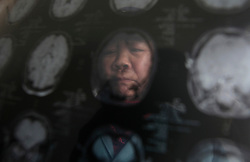 Chinese villager He Cai-er of Xiangnan Village who suffered from a cerebral infarction, which she believed was caused by pollution from a nearby chemical plant, is seen behind her CT scans at home in Zekou Town, Qianjiang City of Hubei Province, China 15 January 2013. While the heavy smog in Beijing and much of northern China in recent days have caused alarm among residents and renewed scrutiny on the pollution woes of the country, villagers in a small town of Hubei Province have been grappling with severe air, water and noise pollution on a daily basis over the past two years. China's Xinhua news reported 04 January 2013 that more than 60 cancer deaths in various villages of Zekou Town has been caused by the heavy pollution from the chemical industry park nearby. About 20 or more chemical plants built around the villages of Dongtan, Xiangnan, Zhoutan, Sunguai, Qingnian and others over the past two years has created huge increases in noise, air and water pollution. Many villagers complained of intensifying respiratory, heart, skin and circulatory illnesses caused by the pollution and a large spike in cancer diagnoses and deaths since the factories were built. .