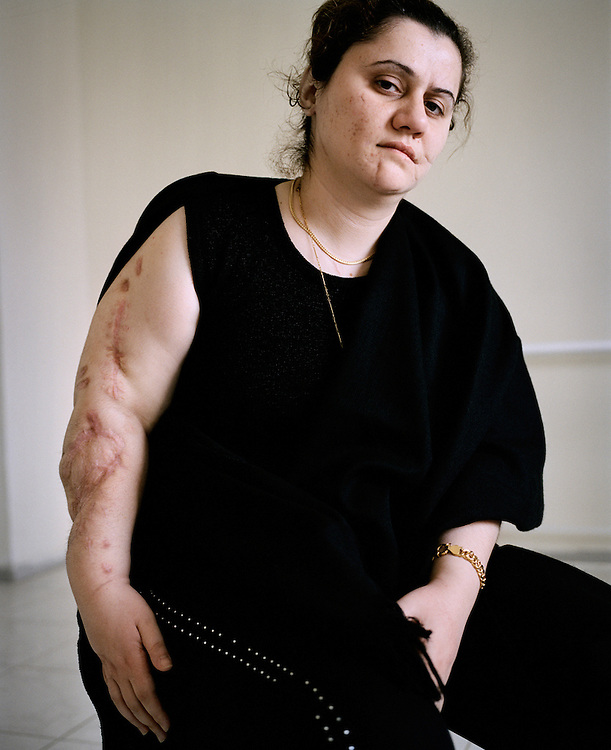 Zena was the sole survivor of a suicide bombing. M&eacute;decins Sans Fronti&egrave;res (Doctor's Without Borders) hospital, Amman, Jordan<br /> <br /> <br /> &copy;2007-2011 Lori Grinker<br /> All Rights Reserved