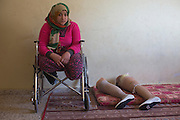 Palestinian Manar Shabari sits in her wheel chair by her   prosthetic legs that have been fitted with festive shoes to be worn at her brother's wedding at a relative's home  in Jabalya, Gaza December ,30,2014 . Manar Shabari,14, suffered severe injuries  on July 24 ,2014 ,during an Israeli military assault on  the UN school in Beit Hanoun, in northern Gaza .Her mother and brother and three other family members were amongst the more than 15 killed at the school where  hundreds of displaced civilians were taking shelter during the war between Israel and Palestinian militants in the Hamas-controlled Gaza Strip . <br /> <br /> According to the United Nations,the 51 day war between Israel and the Hamas-controlled Gaza Strip, 2,251 Palestinians were killed, including 1,462 civilians and 551 children. More than 70 Israelis were killed.(Photo by Heidi Levine/Sipa Press).