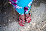 5 year old Omeda's feet (MDR TB).