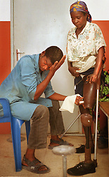 An Angolan who lost her leg to a land mine gets fitted for a prosethetic leg at the International Red Cross hospital in Huambo, Angola. Hundreds of thousands of Angolans  have lost limbs after stepping on a mine and in some towns one-in-four people have lost a limb or have been killed by mines. Despite a huge campaign to educate Angolans of the danger, most are forced to search the countryside for food despite the risk..(Photo by Ami Vitale)