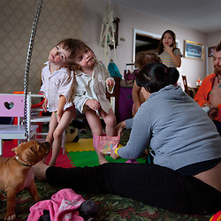 Felicia Simms and Brendan Hogan dress their four-year-old craniopagus twins Tatiana and Krista Hogan in their home in Vernon, British Columbia, Canada, Feb. 28, 2011. The twins, born Oct. 25, 2006, are connected at the head and share a brain.  Neurologists say the twins are the only such set that have a common neurological connection.