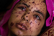 """Rawya abu Jom""""a, 17, at the Shifa Hospital in Gaza City July 22,2014. Rawya was wounded when two Israeli air strikes attacked her family's apartment on Sunday night . Three of her cousins and her sister were killed in the attack . She is suffering from shrapnel in her face, her legs have perforated holes in them and her bones were crushed in her right hand ."""