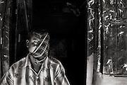 Hashmat Sardar (38), fisherman, was attacked by tiger in Sundarban forest. Image © Mohammad Rakibul Hasan/Falcon Photo Agency