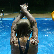 """A young girl, who was burned over 70 per cent of her body in a plane crash that killed her mother and sister, gets ready to dive into the pool at the Miracle Burn Camp in Okoboji, Iowa.  The camp is held annually  for children who have suffered both physically and psychologically from their burn accidents..  """"This camp is all about faith,"""" says camp director Teresa Goehring, who has been at the camp since 1993.  """"Kids come out of it with such an amazing outlook.""""  This camp was in the summer of 2006."""