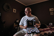 U.S. Army retired SGT Jim Mylott at his home in Toms River, NJ, June 30, 2008..Mylott suffered multiple physical injuries and a brain injury while serving as a Military Police Officer in Diwaniya Iraq when a truck drove through four road blocks striking him and killing two others.  .Mylott has been helped by and continues to receive support by the Wounded Warrior Project..The mission of the Wounded Warrior Project's mission is to honor and empower wounded warriors. It's purpose is to raise awareness and enlist the public?s aid for the needs of severely injured service men and women severely injured...