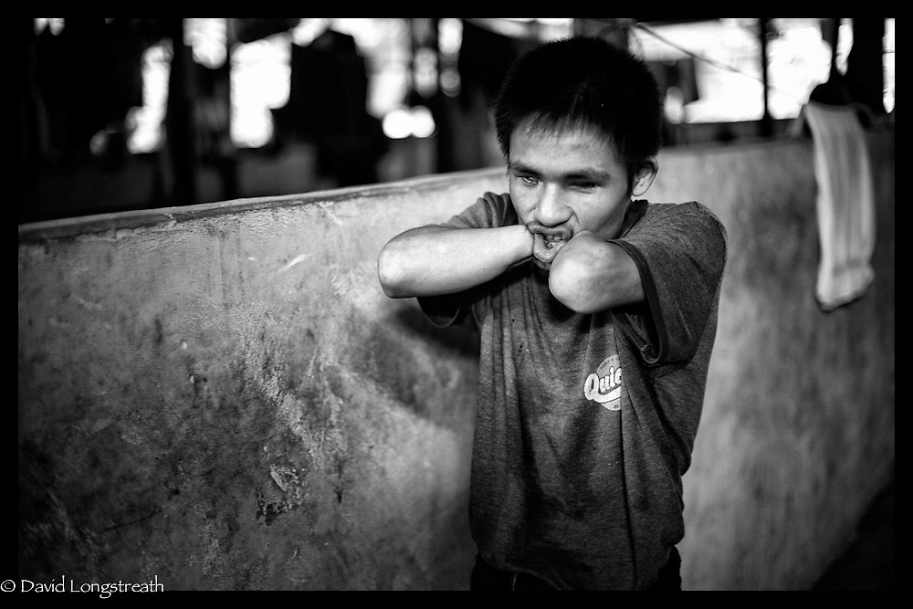 An ethnic Karen refugee, blinded by a landmine explosions, whistles for others to come for an afternoon snack at the Mae La refugee camp near Mae Sot, Thailand. (Photo by David Longstreath)