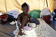 Haitian amputee patient Mara Senea (8) rests in a tent at the Love a Child Health Center in Fond Parisien, Haiti on Thursday, January 28, 2010. An Operation Smile orthopedic and plastic surgical team from Penn State University - Hershey Medical Center in Hershey, PA are in Haiti treating victims of the 7.0 earthquake earlier this month.