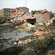 Hazaribagh, the tannery area of Dhaka.  According to the Bangladesh Bureau of Statistics, Hazaribagh area is 5.3 km² with a density of 35,026.2 inh./km² and an approximate population of 185,639. Dhaka, the capital of Bangladesh has an estimated population of 14,543,124 (census 2011-03-15).The Hazaribagh tanneries make up between 90 and 95 percent of all tanneries in Bangladesh and employ 8,000 to 12,000 workers.The effluent that pours off tannery floors and into the open gutters contains animal flesh, dissolved hair, and fats. It also incorporates lime, hydrogen sulfide, chromium sulfate, sulfuric acid, formic acid, bleach, dyes, oils, and a number of heavy metals used in the processing of hides. This effluent flows from the open gutters into a stream that runs through some of Hazaribagh's slums, and into Dhaka's main river, the Buriganga.Each day, the tanneries in Hazaribagh create an estimated 75 metric tons of solid waste (mostly salts, bones, as well as leather shavings and trimmings), an amount which may rise to 200 metric tons of solid waste per day in peak production periods.