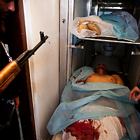 The body of man killed in battle with Qadaffi troops in Brega on March 2, 2011 is placed in the cities morgue.