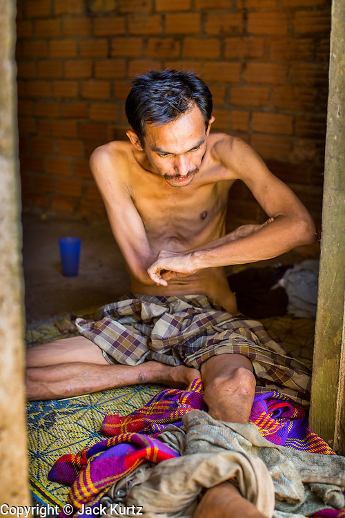 """29 OCTOBER 2012 - MAYO, PATTANI, THAILAND:  A patient at the Bukit Kong home in Mayo, Pattani. He said one of his names is Sukria, but then added, """"I have so many names I don't remember who I am anymore."""" He is kept shackled in his room at the home. The home opened 27 years ago as a Pondo School, or traditional Islamic school, in the Mayo district of Pattani. Shortly after it opened, people asked the headmaster to look after individuals with mental illness. The headmaster took them in and soon the school was a home for the mentally ill. Thailand has limited mental health facilities and most are in Bangkok, more than 1,100 kilometers (650 miles) away. The founder died suddenly in 2006 and now his widow, Nuriah Jeteh, struggles to keep the home open. Facilities are crude by western standards but the people who live here have nowhere else to go. Some were brought here by family, others dropped off by the military or police. The home relies on donations and gets no official government support, although soldiers occasionally drop off food. Now there are only six patients, three of whom are kept chained in their rooms.  Jeteh says she relies on traditional Muslim prayers, holy water and herbal medicines to treat the residents. Western style drugs are not available and they don't have a medic on staff.    PHOTO BY JACK KURTZ"""