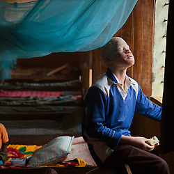 Persons with Albinism share the residence with other students with disabilities at the Kabanga Protectorate Center and School. The center receives some government aid but relies heavily on donations from charities.