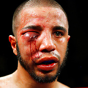 Nasty boxing injuries