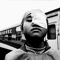 """CHONGZUO, GUANGXI- APRIL 10,2004:.a farmer girl stands outside the """"Lifetime Express"""", a train that functions as a movable hospital, where a team of foreign voluntary doctors just removed her eye- cataract in Chongzuo, April 10, 2004, in China..In China, of the 9 million blind people, 4 million have been blinded by cataracts- a condition that's generally easy to cure. However, while more than 400,000 new cases develop on the mainland each year, only about 200,000 operations are carried out according to the World Health Organization (WHO). Operations can cost more than USD 500, an amount that's out of reach for many rural Chinese . In the area around Chongzuo, one of the poorest regions in China, the annual income only amounts to USD 120-250.."""