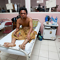 Padang, Western Sumatra, Indonesia, 7th October 2009:?A man with heavy facial bruising suffered during the earthquakes sits in a ward of the  Dr M. Djamil hospital in Padang following the devastating earthquake in Western Sumatra that claimed the lives of an estimated 2000 people.?Photo: Joseph Feil