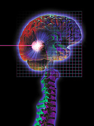 photo montage showing brain tumor being vaporized with radio surgery