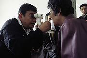North Korea Eye Surgery Workshop.  Dr Sanduk Ruit examines the eye of a patient in post operative examinations.
