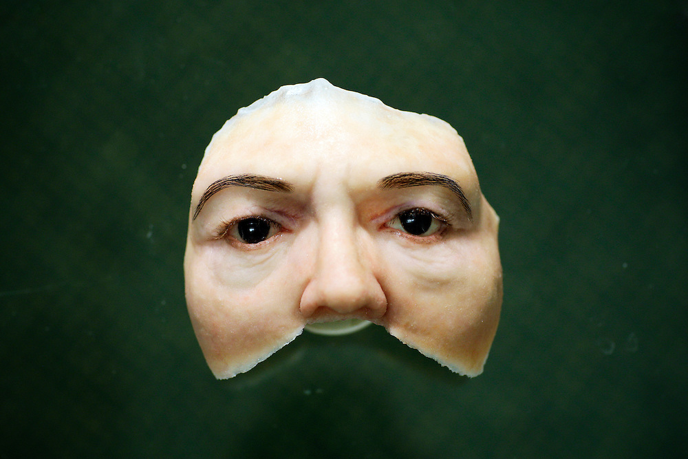 A prosthetic of a human face stares from the glass tabletop at Dr. David Trainer's office in Naples. In 2001 a woman named Amalia Mendoza was in a car accident on a rural Colombian road which resulted in the loss of most of her face including her hair, both eyes, nose, and sections of her skull. After years of frustration, one of Amalia's daughters brought her to America to seek the help of David Trainer, a specialist in facial prosthetics, in the hopes he could give Mendoza her identity back. Greg Kahn/Staff
