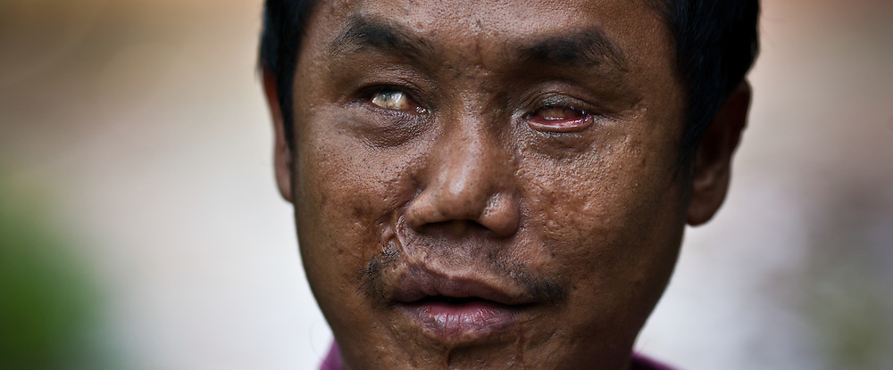 A disfigured former soldier with the Karen Liberation Army looks on at Mae Hla refugee camp along the Thai-Burma border.