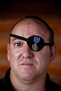John Daniel Shannon, 48, a former US Army Senior Sniper, is portrayed in his home in Westcliffe, CO, USA, where he retired with his family after a serious brain injury inflicted by an insurgent sniper in Ramadi, Al Anbar Province, Iraq, on November 13th 2004. Daniel fought during the Second Battle of Fallujah and was then moved to nearby Ramadi. Daniel lost his left eye and has multiple health issues because of his injury: memory problems, balance problems, he can't smell and taste well anymore, he suffers from PTSD, has  troubles with large crowds and city surroundings. This is the reason why he and his family moved to a quiet location on the Rocky Mountains. In 2007 Dan helped the Washington Post to uncover patients' neglect at the Walter Reed Army Medical Center; he also testified before Congress. Torrey, 42, his wife, is a freelance writer and a contributor for the Huffington Post; she's also campaigning to improve the situation of veterans' families.